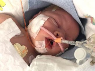 Having a preemie can be tough, but it's not all bad